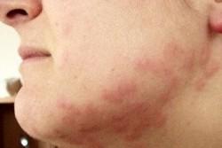 ugryzienia pluskiew na twarzy i szyi